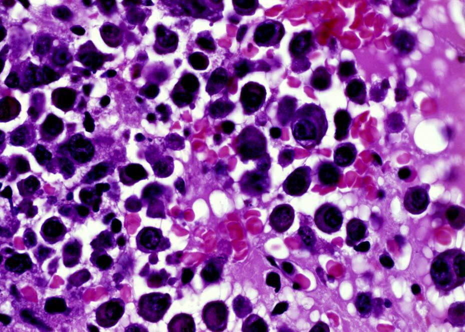 Zmienione nowotworowo plazmocyty rozprzestrzeniają się w szpiku kostnym i osłabiają kości