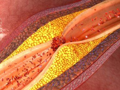 Walka z wysokim cholesterolem – co wykluczyć z diety?