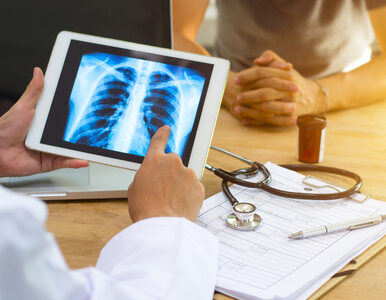 Rak płuc zabójca numer jeden w Polsce