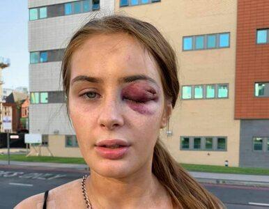 Odrzuciła chłopaka przy jego kolegach. Wtedy ją zaatakował