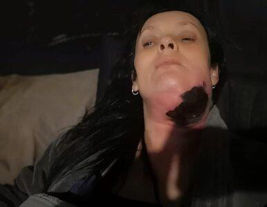 """Poszła do dentysty z bólem zęba. W rzeczywistości jej ciało """"pożerały""""..."""