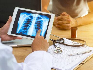 Problem chorych na raka płuca. Chodzi o finansowanie terapii