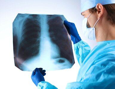 Pierwsza innowacyjna terapia w drobnokomórkowym raku płuca