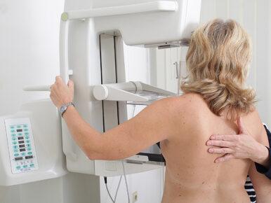 Rak piersi nie zawsze wymaga chemioterapii. Przełomowe badania