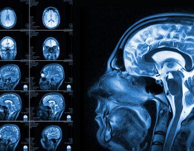 Rezonans magnetyczny – co należy wiedzieć o tym badaniu?